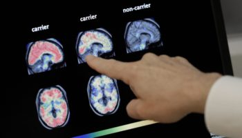 The Most Promising Breakthrough In Alzheimer's Treatment Is Not A Drug