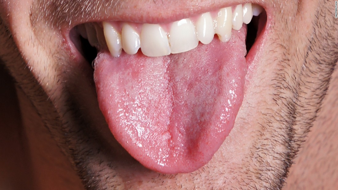 Lose Fat In Your Tongue To Improve Sleep Apnea, Study Says