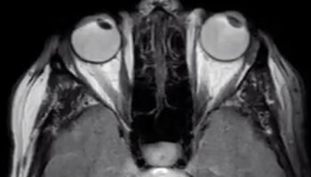 It's Freaky Watching How The Optical Nerves Move During Our Eye Movements