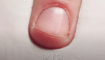 Here's A One-Year Time-Lapse Of A Fingernail Growing And Getting Trimmed