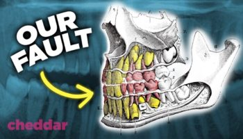 How Did Human Teeth Get So Bad?