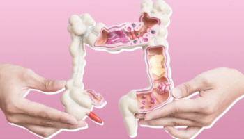 The Terrifying Truth About Young People And Colon Cancer