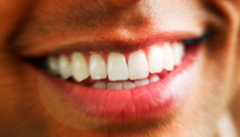 Do Any At-Home Teeth-Whitening Products Actually Work? A Dentist Weighs In